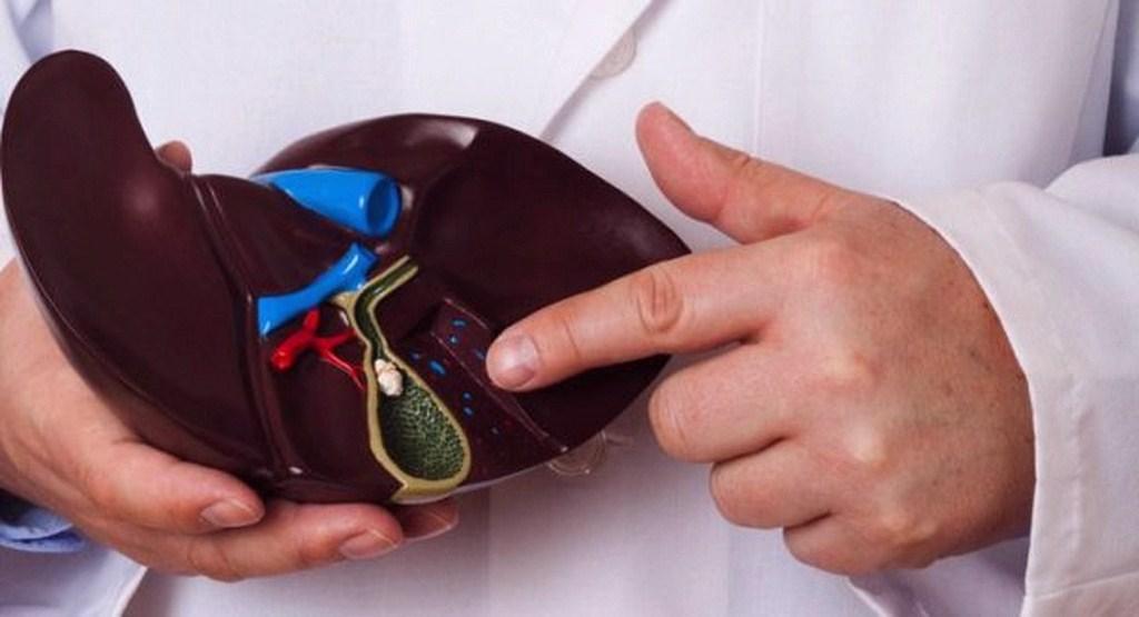 عوامل ایجاد و روشهای درمان سنگ کیسه صفرا چیست