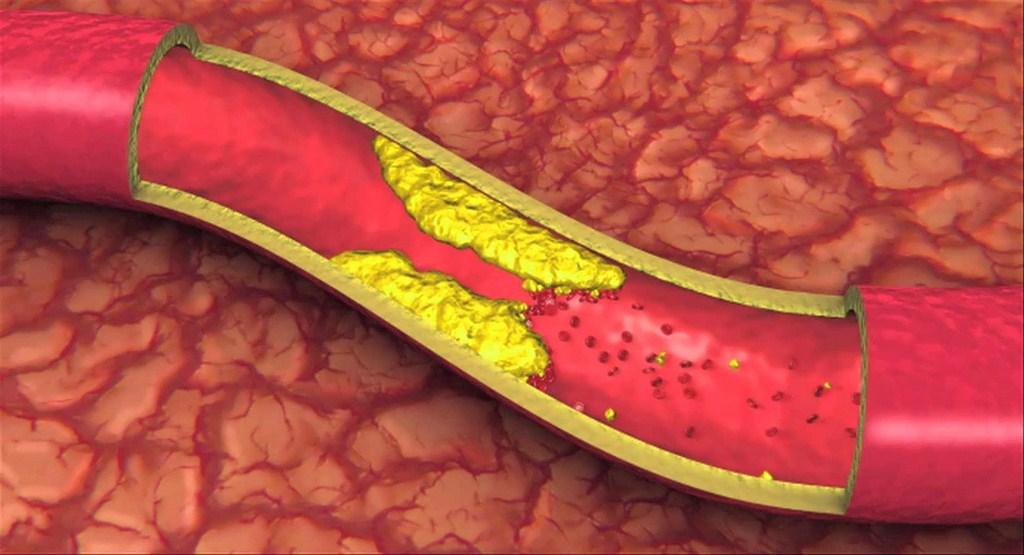 بهترین راهکارها جهت کاهش چربی خون چیست