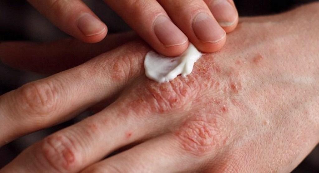 بهترین روش درمان اگزمای پوستی چیست