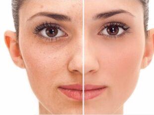 روش های سفید و روشن کردن پوست صورت کدامند